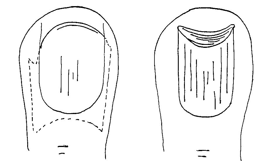 Ноготь
