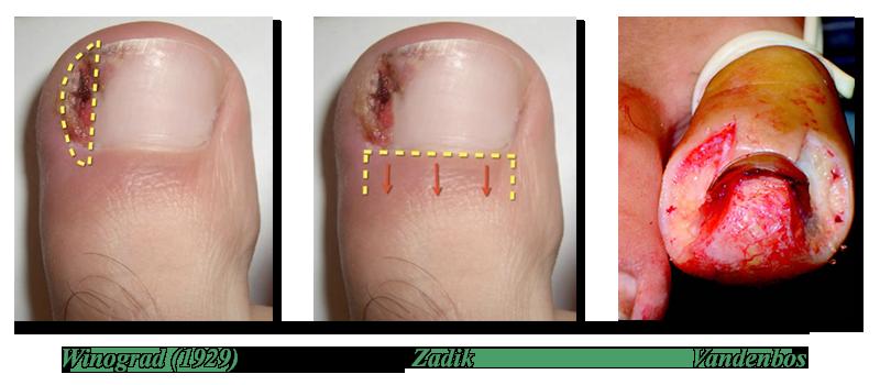 Техника операций на вросшем ногте (история вопроса)